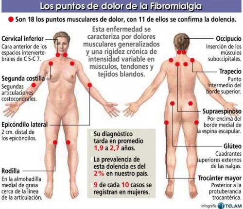 eternasfibromialgia-puntos